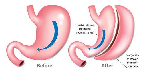 به علت کاهش وزن شدید که روی می دهد بدن بیمار شرایط تازه ی را تجربه می نماید