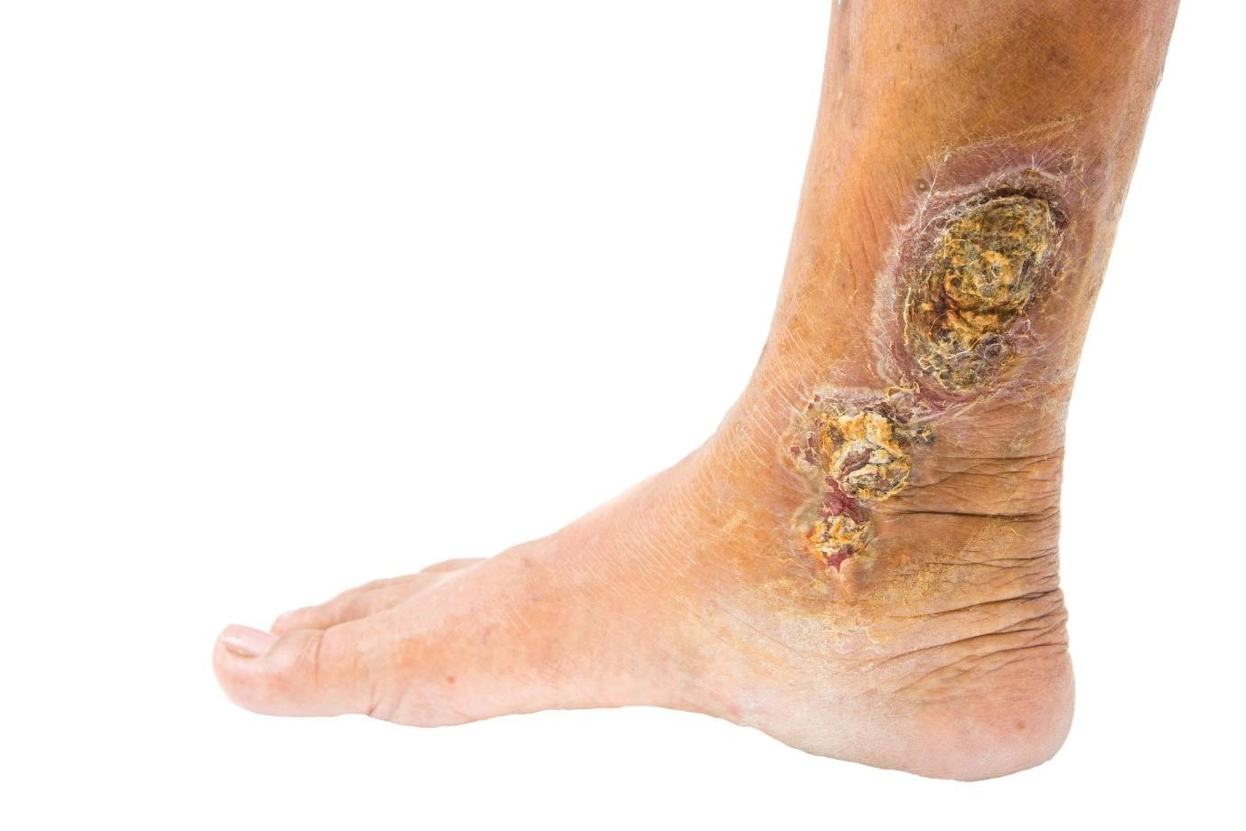علل بروز زخم ایسکمیک