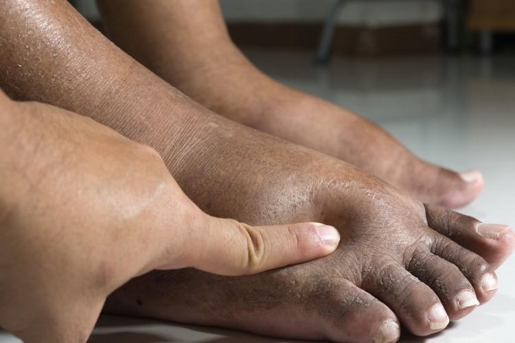 مرحله اول زخم پای دیابتی: