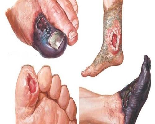 زخم های دیابتی