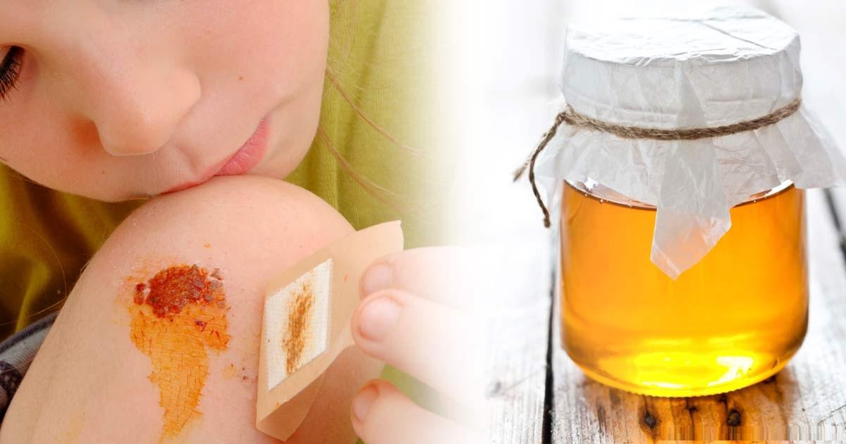 از گذشتهای دور عسل جایگاه ویژهای در طب سنتی داشته است