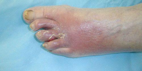 پماد برای تاول پای دیابتی