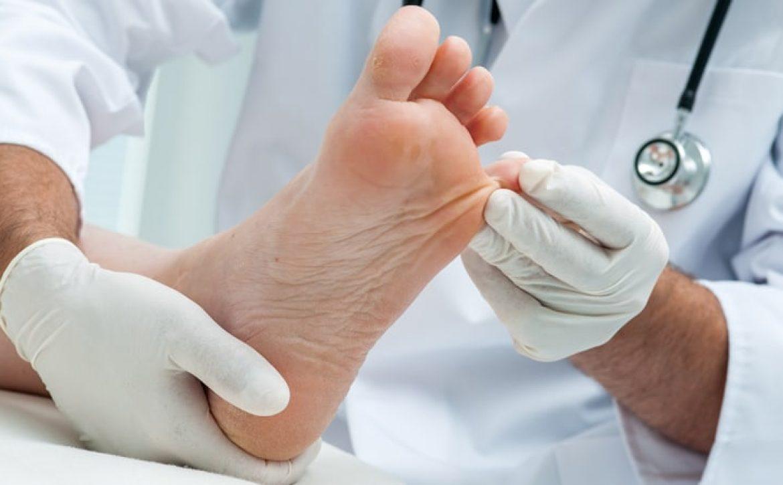 دلیل تاول زدن پا در دیابتی ها