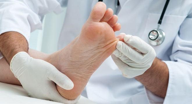 وقتی که اشخاص دچار یکی از مدل های بیماری دیابت می شوند، این امکان وجود دارد که دو عارضه ی مختلف در ناحیه ی پای آن ها ایجاد شود. این دو عارضه به شرح ذیل می باشند: