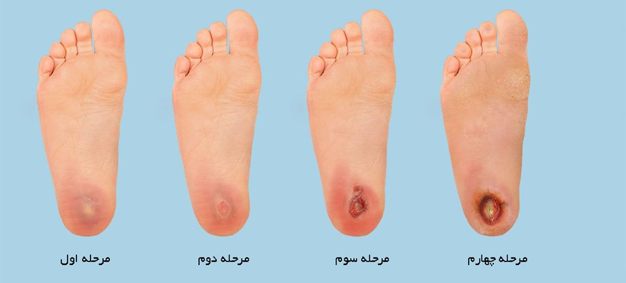 آیا در زمینه ی درجه بندی انواع زخم های پای دیابتی اطلاعاتی دارید؟