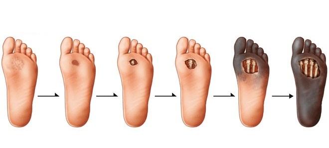 ترمیم و بهبود زخم ها به صورت مرحله به مرحله می باشد