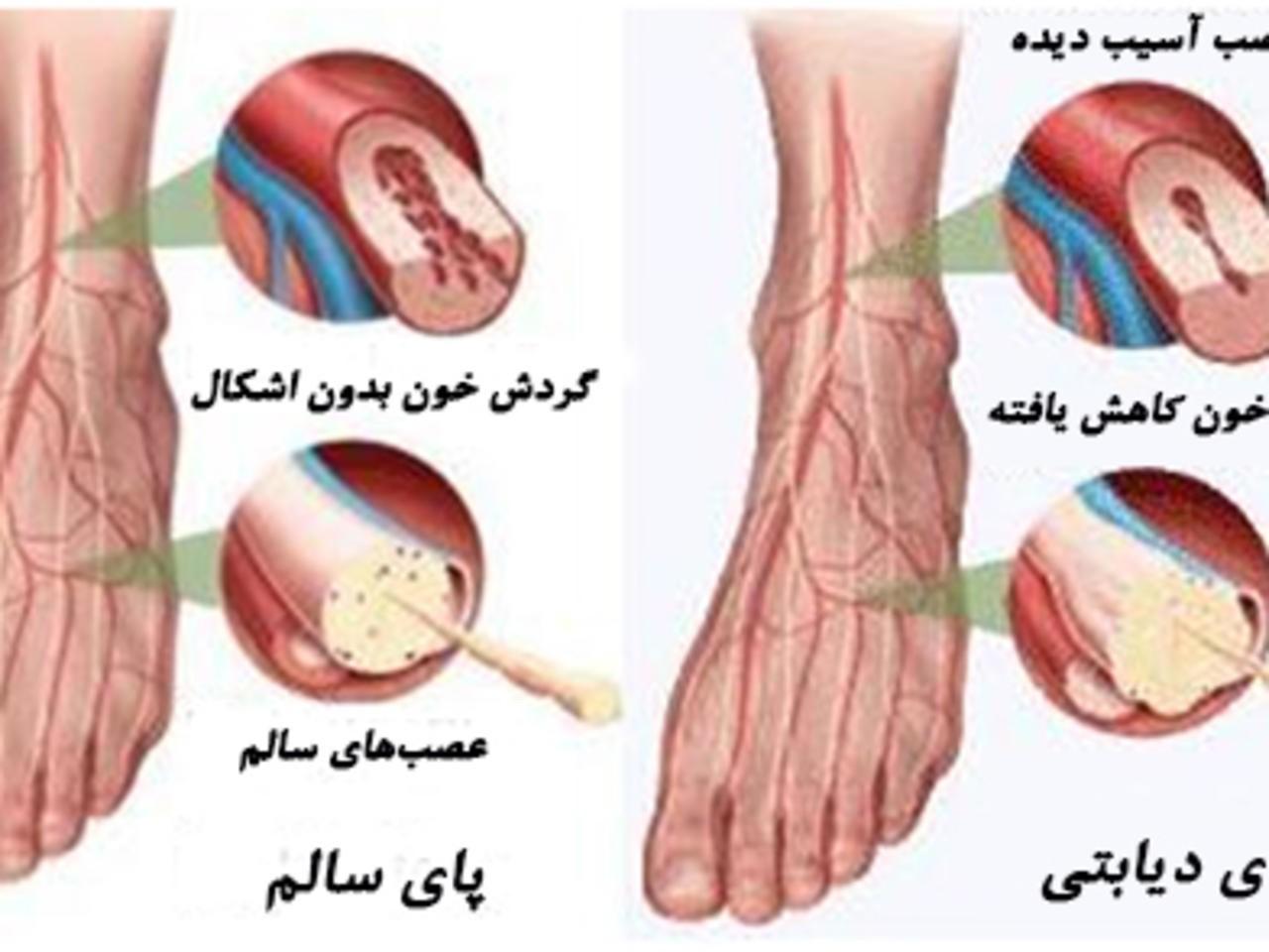 این عارضه ها و زخم ها جزء مشکل های جانبی در بیماری مرض قند می باشند