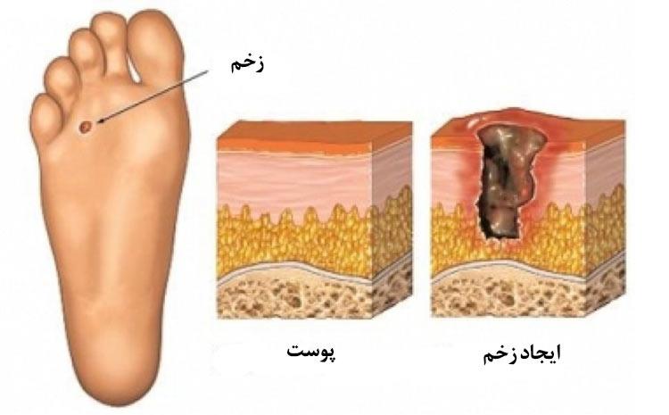 گرید دو در واگنر گرید، نشاندهنده ی چه وضعیتی در مورد زخم پای بیمار دیابتی است؟