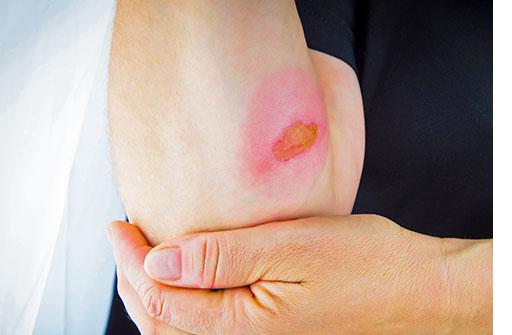 علائم عفونت در زخم سوختگی