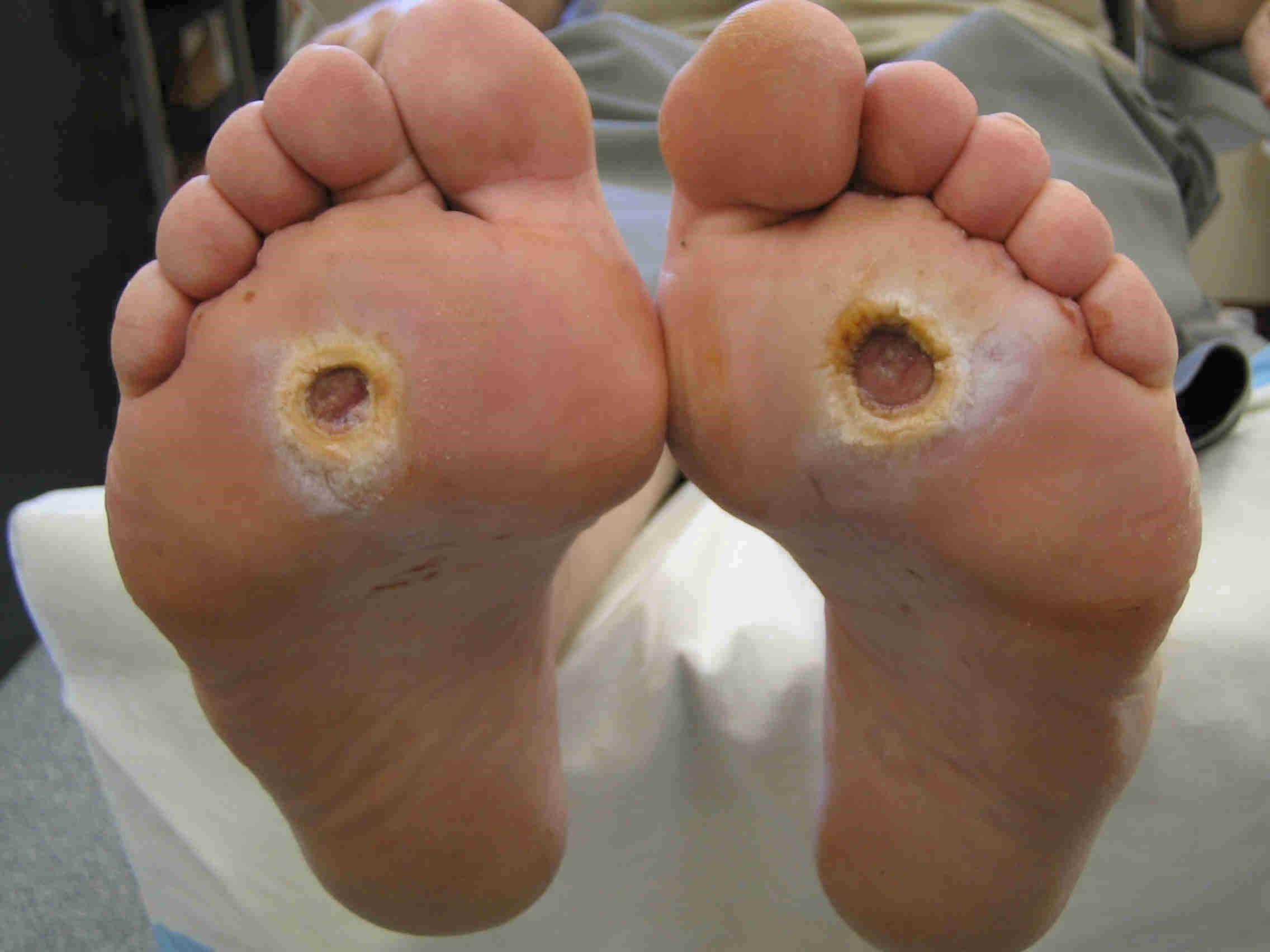 مرحله چهارم زخم پای دیابتی: