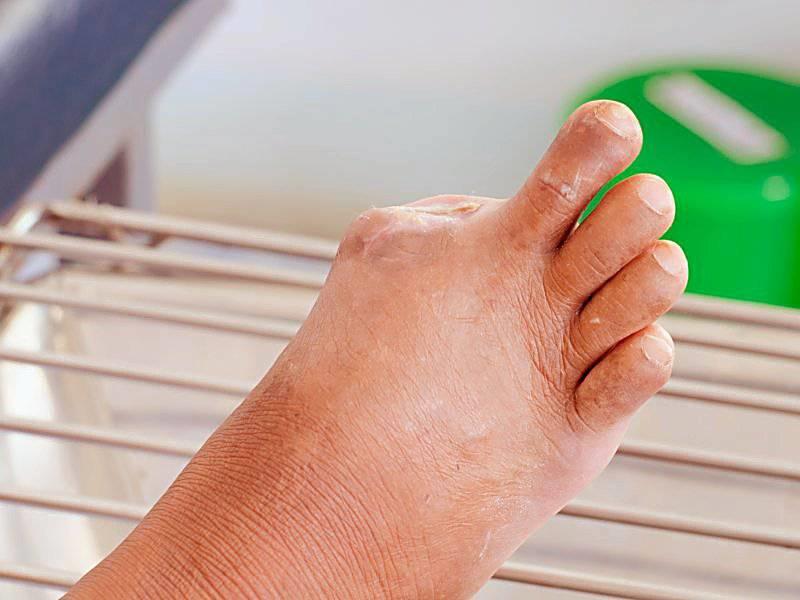 معمولا این نوع صدمه در افراد دیابتی بیشتر در مورد پاها اتفاق می افتد