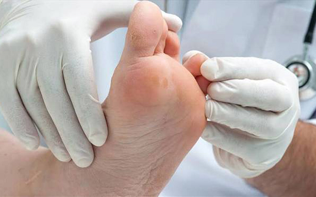 مدت دوره تاول پای دیابتی از طریق پماد آنتی بیوتیک