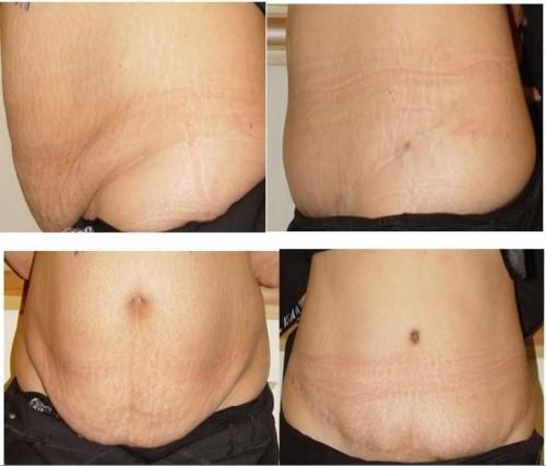 جراحی چاقی لیپوماتیک (پیکرتراشی)