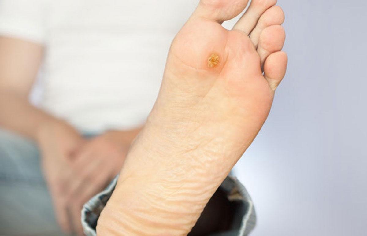 نشانه های تاول در دیابتی ها