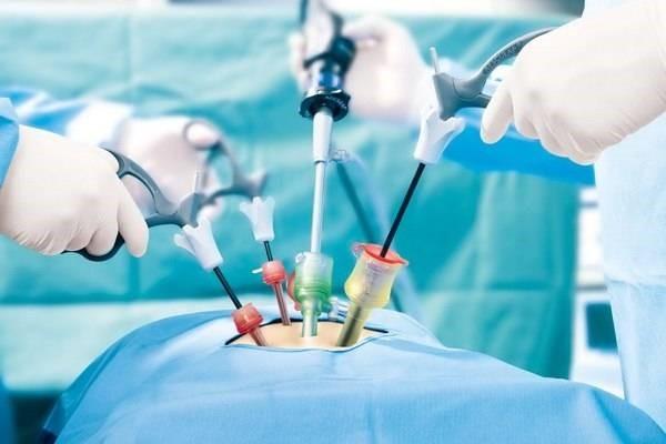 افرادی که کاندیدای انجام جراحی کیسه صفرا نیستند