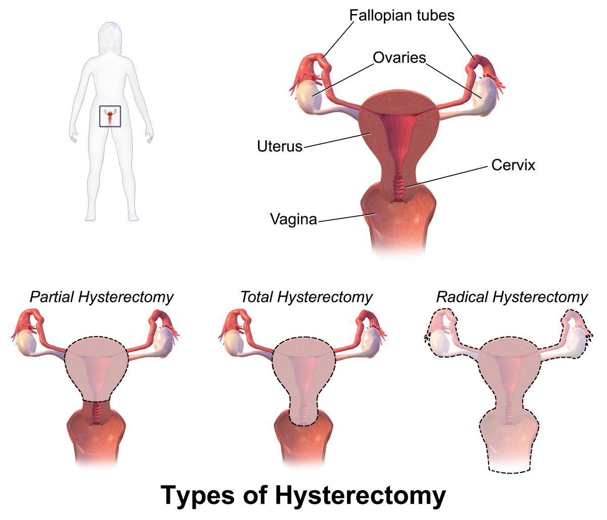 مزیت های جراحی هیسترکتومی به روش لاپاراسکوپی