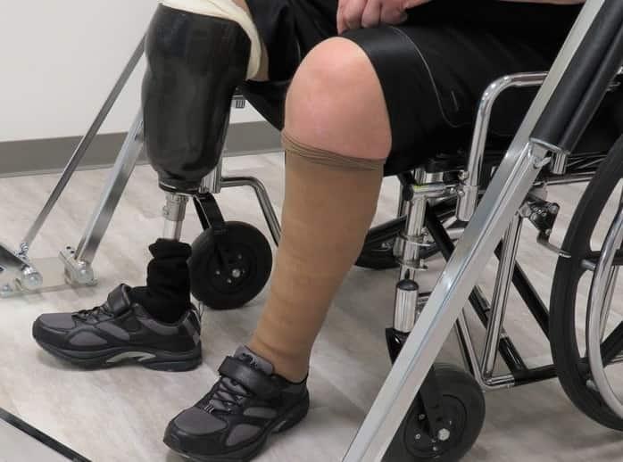 پانسمان زخم های پاهای افراد دیابتی می بایست خیلی دقیق و حساس انجام گیرد