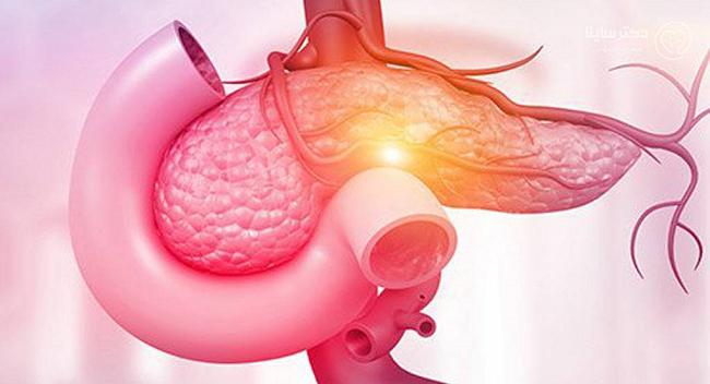 علائم التهاب پانکراس