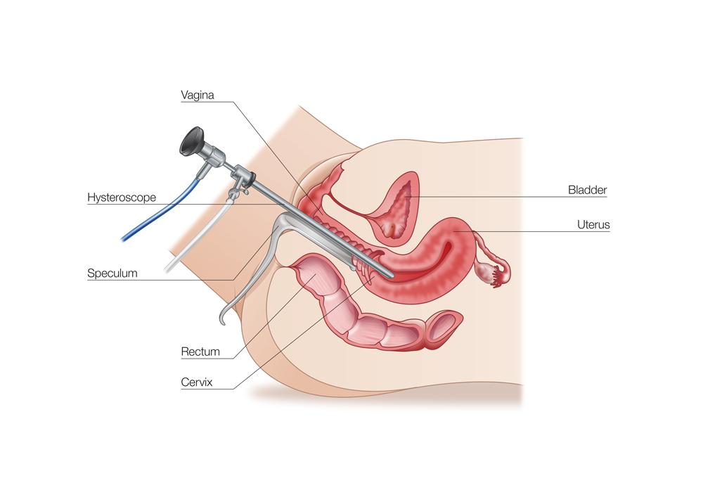 عوامل تاثیرگذار در هزینه جراحی هیستروسکوپی چیست