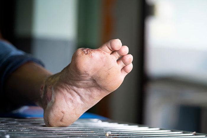 درمان زخم پا در بالاترین سطح گرید بندی