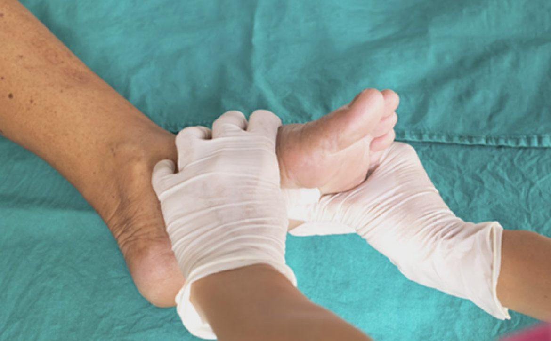 کبودی و تغییر رنگ پا
