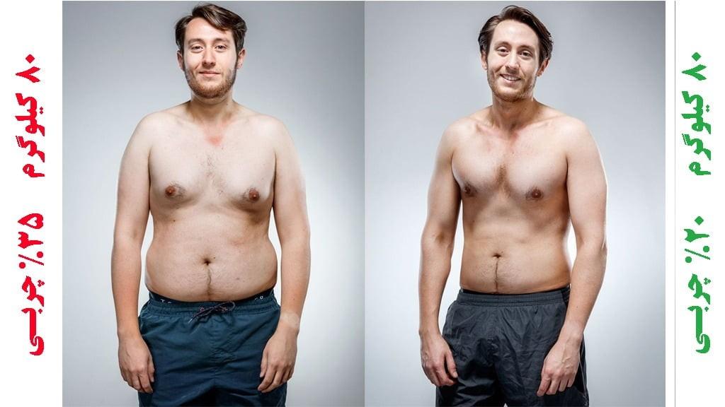 عکس قبل و بعد عمل لاغری