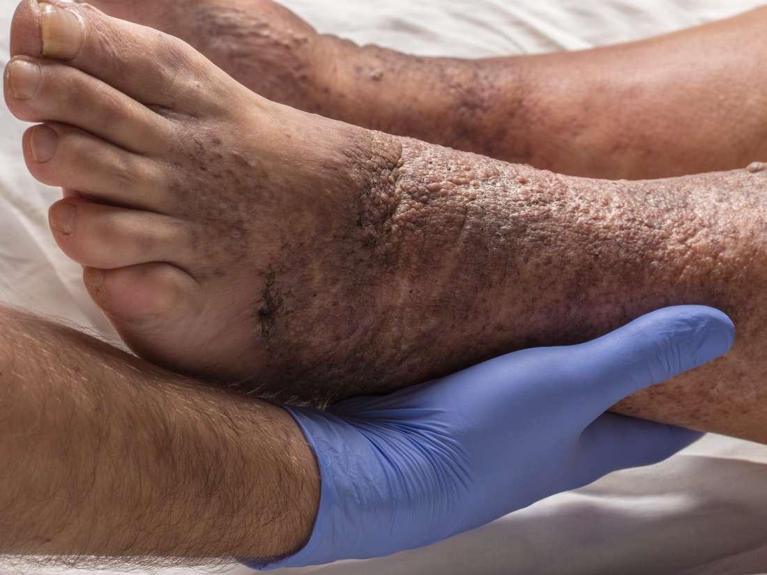 آیا تشخیص وضعیت زخم توسط خود بیمار امکان پذیر می باشد؟
