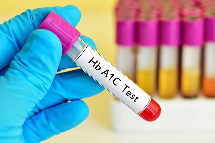 انجام آزمایش HBA1C