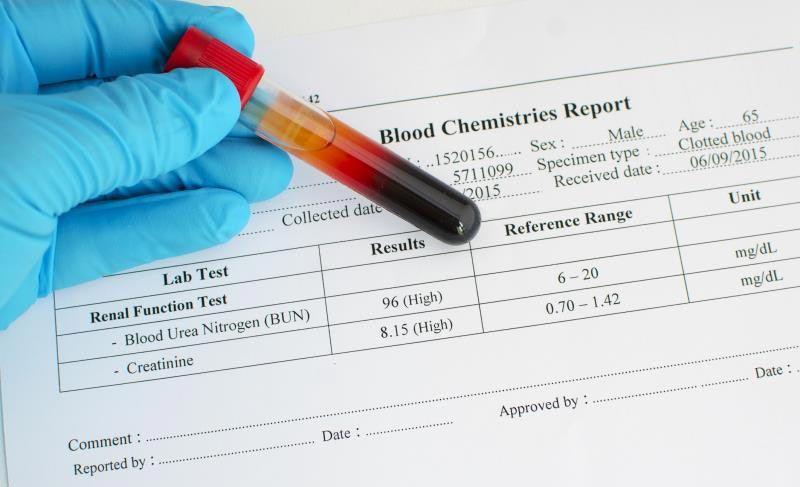 نتیجه آزمایش هموگلوبین ای وان سی در بارداری