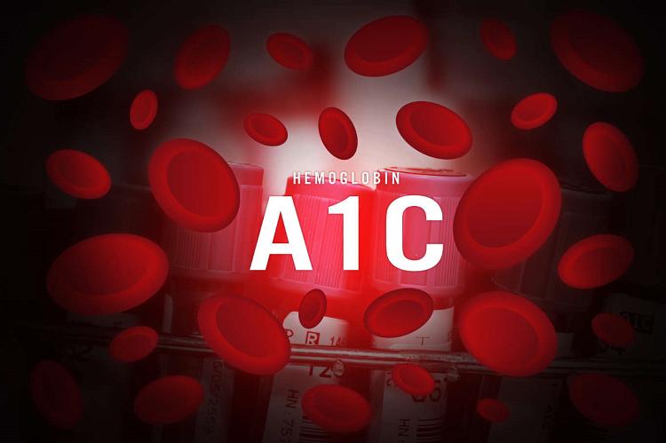 آزمایش هموگلوبین (A1C):