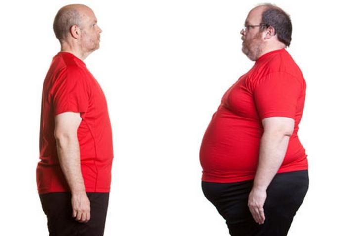 کاهش حجم معده بر اساس جراحی لاغری