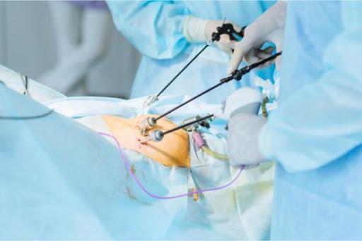 ایمنی جراحی لاپاراسکوپی چه میزان است؟