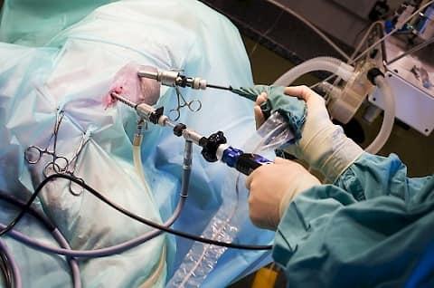 سختی جراحی