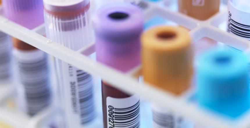 urine volume در آزمایش نشانه چیست